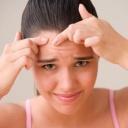 Jak vyčistit pleť bez nepříjemného vymačkávání?