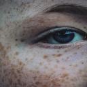 Pigmentové skvrny na kůži může způsobit i lak na vlasy