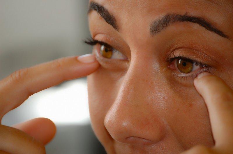 plastika, oči, oční víčka, oční lékař, laserová operace