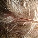 Akupunktura se nemusí provádět jen za pomocí jehel, lze to dělat i bezbolestně