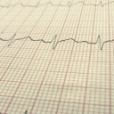 Srdeční vady u dětí - vrozené a získané