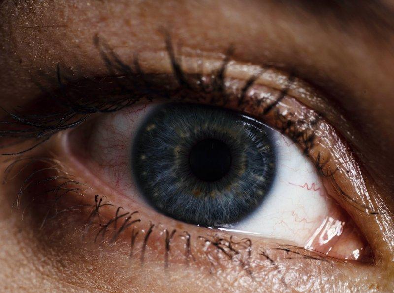 spadlá oční víčka, oši, vidění, zrak, dekorativní kosmetika, líčení